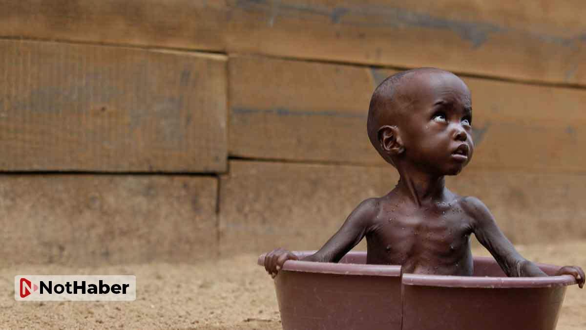 16 milyonu çocuk olmak üzere 35 milyon kişi açlıktan ölecek!